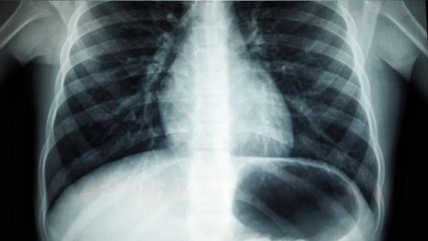 Hälsorisker med radon